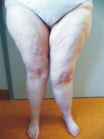 Dicke beine lymph