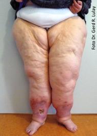 lipödem fettabsaugung