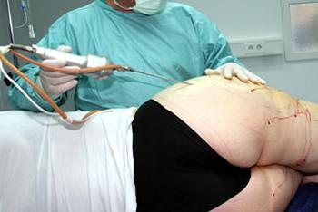 ergebnisse nach fettabsaugung