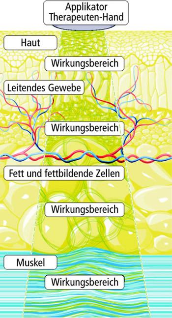 Lymphdrainage durch Tiefenoszillation beim Lipödem